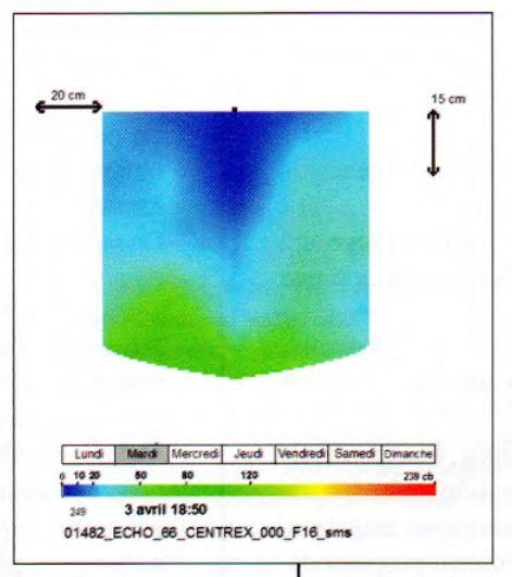 Irrigation goutte à goutte : echographie du bulbe